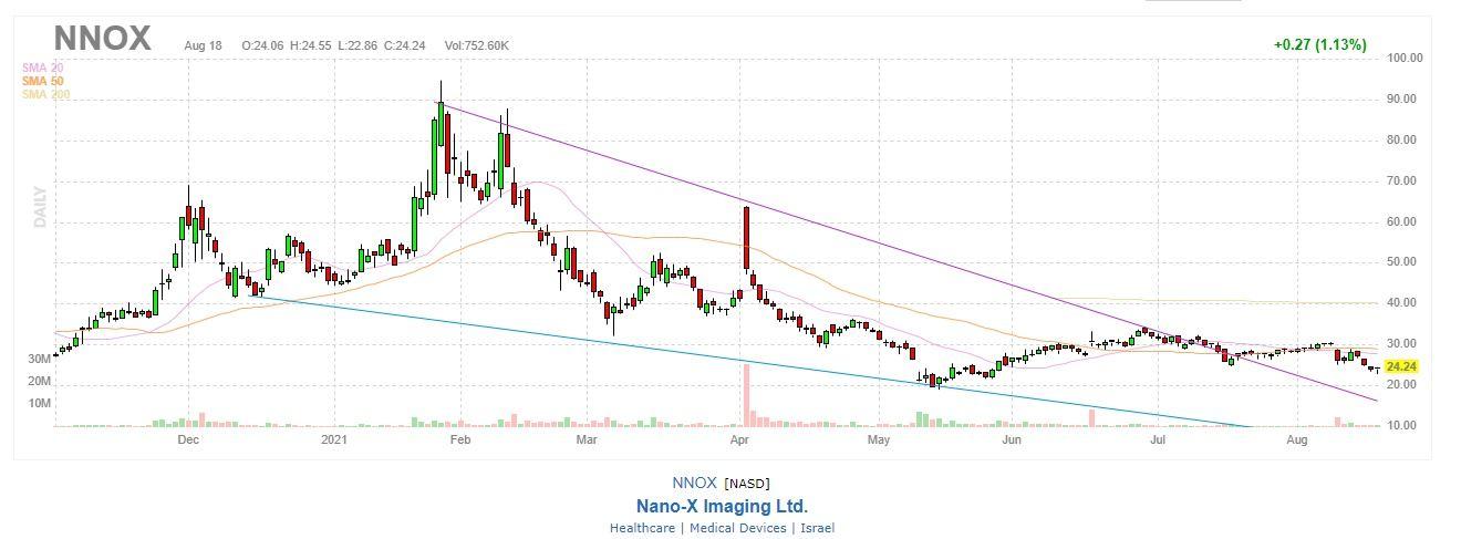 NNOX Stock